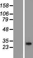 NBL1-15324 - RGS18 Lysate
