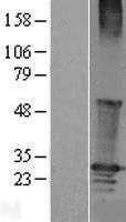 NBL1-15325 - RGS19 Lysate