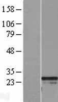NBL1-15327 - RGS2 Lysate