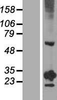 NBL1-15328 - RGS20 Lysate