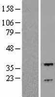 NBL1-15331 - RGS3 Lysate