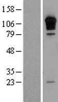 NBL1-15332 - RGS3 Lysate