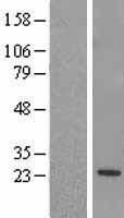 NBL1-15335 - RGS5 Lysate