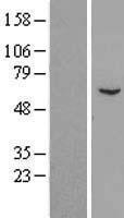 NBL1-15337 - RGS7 Lysate