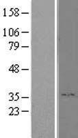 NBL1-15340 - RHBDD1 Lysate