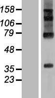 NBL1-15341 - RHBDD2 Lysate