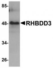 NBP1-76250 - RHBDD3