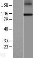 NBL1-15343 - RHBDF1 Lysate
