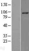 NBL1-15344 - RHBDF2 Lysate
