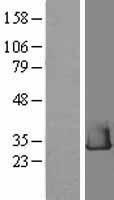 NBL1-15347 - RHEBL1 Lysate