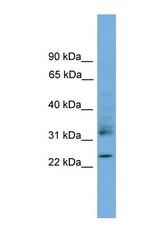 NBP1-57032 - RhoJ