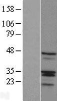 NBL1-15365 - RIBC1 Lysate