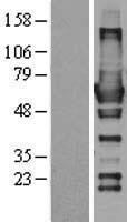 NBL1-15368 - RIC8 Lysate