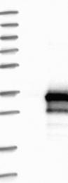 NBP1-82041 - RILPL2