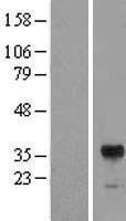 NBL1-15371 - RIMS3 Lysate