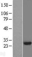 NBL1-17622 - RING finger protein unkempt like Lysate