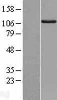 NBL1-15380 - RIPK5 Lysate