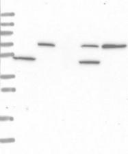 NBP1-87127 - SCPEP1