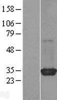 NBL1-15382 - RIT2 Lysate
