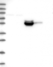 NBP1-87999 - MEX3B / RKHD3