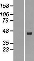 NBL1-15390 - RMND5B Lysate