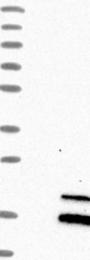 NBP1-86134 - RNASE7