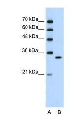 NBP1-58234 - RNASEH2A