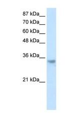 NBP1-58235 - RNASEH2A