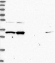 NBP1-89201 - RNASEH2A