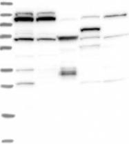 NBP1-94140 - RNF111