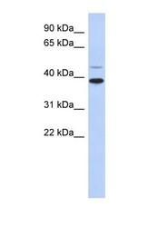 NBP1-59638 - RNF121