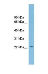 NBP1-55373 - RNF125