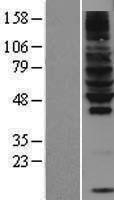 NBL1-15421 - RNF130 Lysate