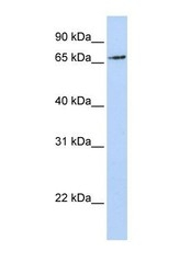NBP1-59756 - RNF139