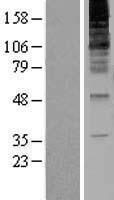 NBL1-15424 - RNF139 Lysate