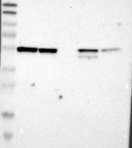 NBP1-89021 - RNF14