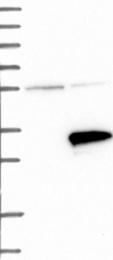 NBP1-80603 - RNF141
