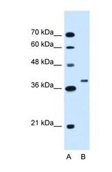 NBP1-55068 - RNF146