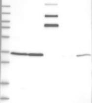 NBP1-85318 - RNF146