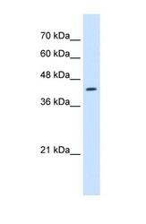 NBP1-70695 - RNF165