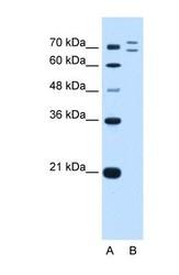 NBP1-55075 - RNF168