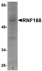 NBP1-76324 - RNF168