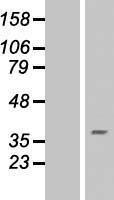 NBL1-15436 - RNF175 Lysate