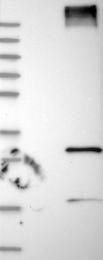 NBP1-82707 - RNF182