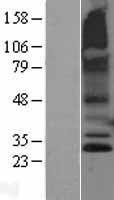 NBL1-15438 - RNF182 Lysate