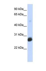 NBP1-59774 - RNF186