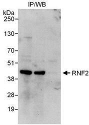 NBP1-49967 - RNF2
