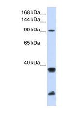 NBP1-52945 - BRE1A / RNF20