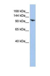 NBP1-52985 - BRE1A / RNF20