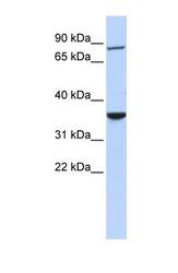 NBP1-54794 - RNF207